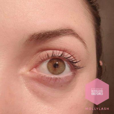 Eyebrow Microblading Before 3