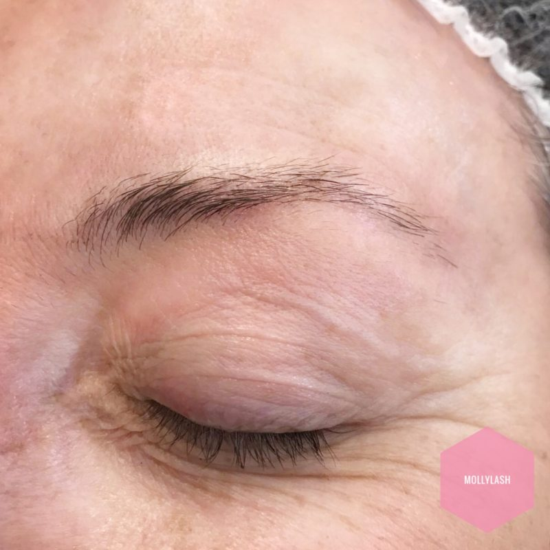 Microblading Client 5 – Before